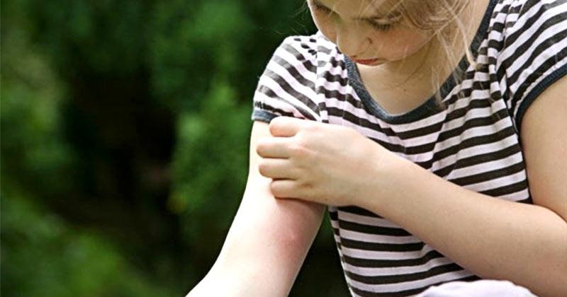Аэрозоли от комаров